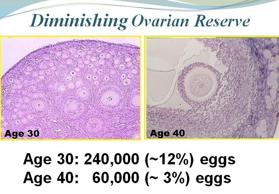 diminished ovarian reserve after age 40