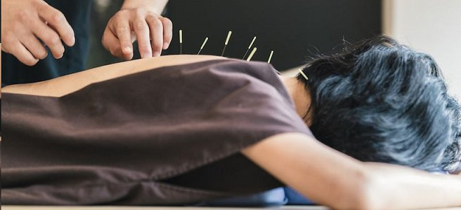 acupuncture - an alternative to fertility medicines