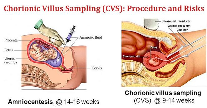 CVS Test