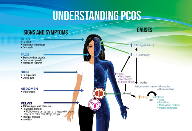 PCOS signs, symptoms and causes