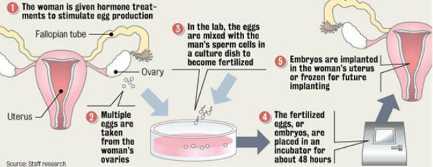 fertility medication procedure