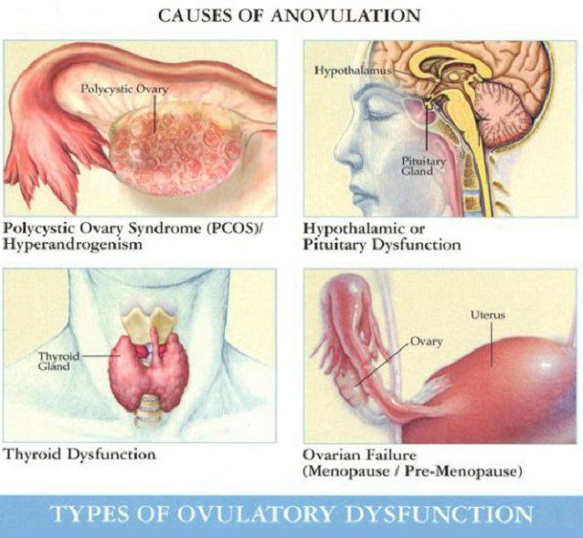 causes of anovulation
