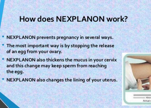 how does nexplanon work