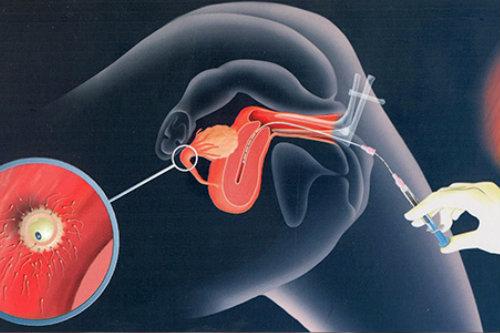 intrauterine_insemination