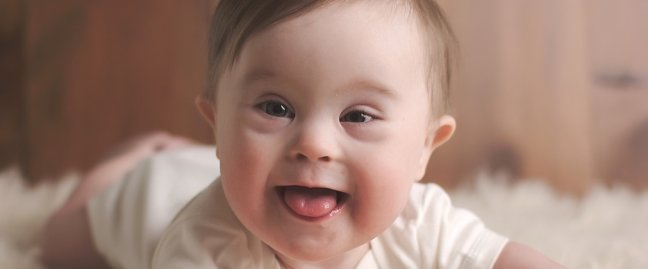 One of the risks you are probably aware of when you conceive in your 40's is the increased odds of having a child with Down's Syndrome