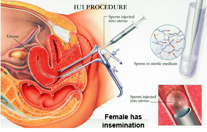 Intrauterine Insemination (IUI)