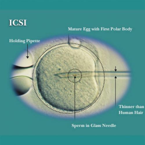 Intracytoplasmic Sperm Injection - to boost low sperm count