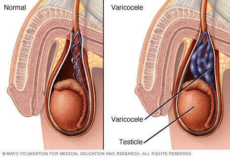 Varicocele veins