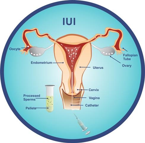 intrauterine insemination IUI