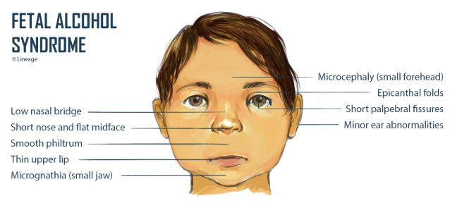 fetal alcohol syndrome - Pregnancy rule
